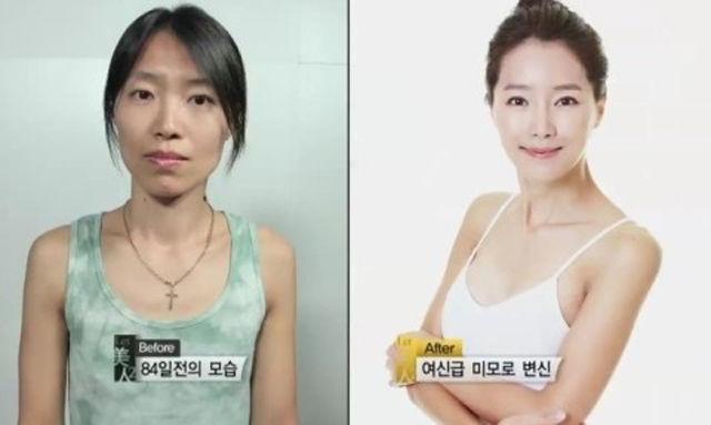 Plastica-coreana-04