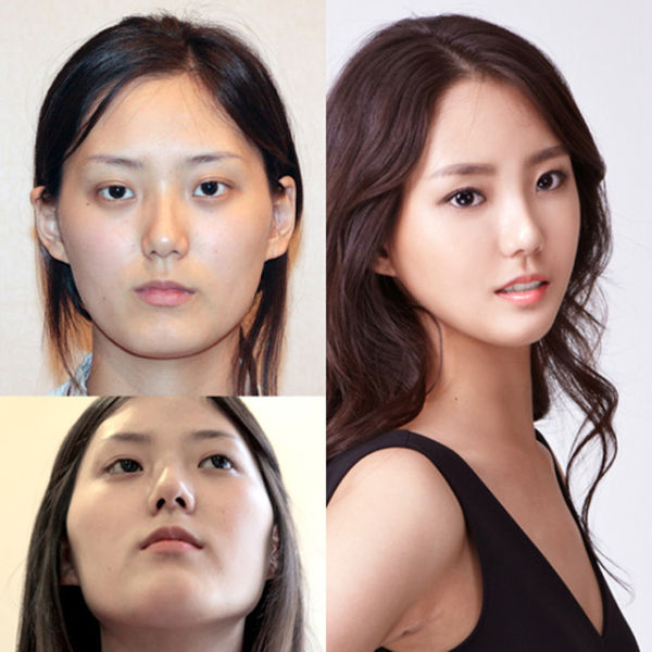 Plastica-coreana-06