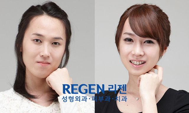 Plastica-coreana-07
